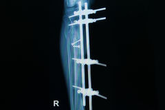 Röntgenstraalbeeld van breukbeen (scheenbeen) met implant stock fotografie