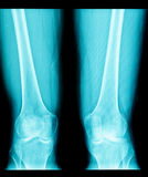 Röntgenstraalbeeld van knieverbinding stock foto's