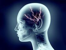 Röntgenstraalbeeld van menselijk hoofd met bliksem Royalty-vrije Stock Fotografie