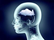 Röntgenstraalbeeld van menselijk hoofd met wolken Royalty-vrije Stock Fotografie