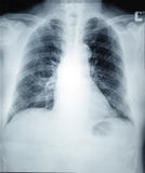 Röntgenstraalbeeld van Menselijke Gezonde Borst stock fotografie
