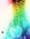 Röntgenstraalbeeld van menselijke ruggegraat Stock Foto's