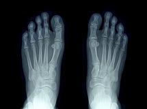 Röntgenstraalbeeld van twee voet Royalty-vrije Stock Foto's