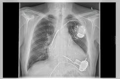 Röntgenstraalbeeld, verbindingen, kunstmatige harthartstimulator stock afbeelding