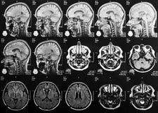 Röntgenstraalhoofd en hersenen stock afbeelding