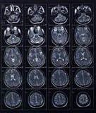 Röntgenstraalhoofd en hersenenradiografie Stock Foto's