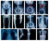 Röntgenstraalinzameling veel lichaamsdeel royalty-vrije stock foto