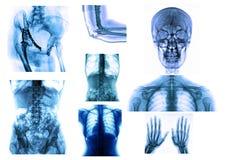 Röntgenstrahl stockbild