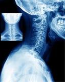 Röntgenstrahl lizenzfreies stockfoto