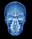 Röntgenstrahl lizenzfreie stockfotos