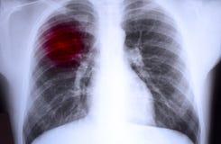 Röntgenstrahl Stockbilder
