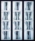 Röntgenstrahl adert Sammlung Lizenzfreie Stockfotos