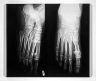Röntgenstrahl der Füße Lizenzfreies Stockfoto