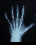 Röntgenstrahl der Hand; Draufsicht Stockfoto