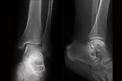 Röntgenstrahl der Knöchelröntgenphotographie in zwei Projektionen Stockfotos