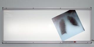Röntgenstrahl der Lungen auf negatoscope Stockfotografie