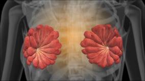 Röntgenstrahl der weiblichen Brüste mammogramm stock abbildung