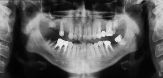 Röntgenstrahl der Zähne Stockfoto