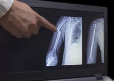 Röntgenstrahl des Bruchs einer Hand und der Hand nach Operation stockfoto