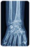 Röntgenstrahl des Handgelenkes Stockfotos