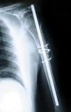 Röntgenstrahl des Humerus Stockbilder