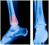 Röntgenstrahl des Knöchels Stockfoto