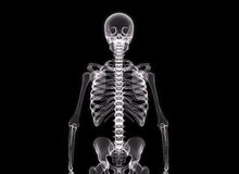 Röntgenstrahl des menschlichen Körpers Stockfotografie