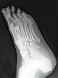 Röntgenstrahl des rechten Fußes lizenzfreies stockbild