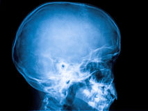 Röntgenstrahl des Schädels Stockbild