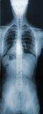 Röntgenstrahl des Torsos Lizenzfreies Stockfoto