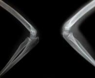 Röntgenstrahl eines Armes des jungen Mannes Lizenzfreie Stockfotos