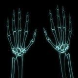 Röntgenstrahl gelassen und rechte Hände Stockbild