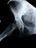 Röntgenstrahl-/Hüfteseite Lizenzfreies Stockbild