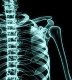 Röntgenstrahl-Kasten lizenzfreie abbildung
