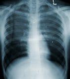 Röntgenstrahl-Menschen-Kasten Stockbild