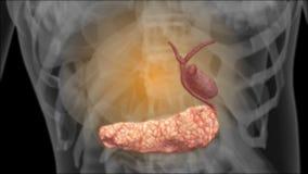 Röntgenstrahl vom Gallen lizenzfreie abbildung