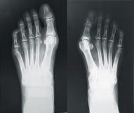 Röntgenstrahl von bezahlt Lizenzfreies Stockbild