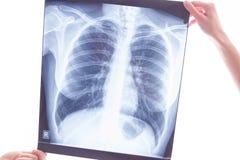Röntgenstrahl von den Lungen, die Lungenkrebs überprüfen Stockbilder