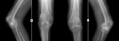 Röntgenstrahl von Kniegelenken Verformung von Arthrose Negativ lizenzfreie stockfotos