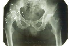 Röntgenstrahlabbildung Stockbild
