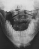 Röntgenstrahlabbildung des Schädels Stockbilder