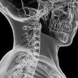 Röntgenstrahlansicht des menschlichen zervikalen Dorns Stockbild