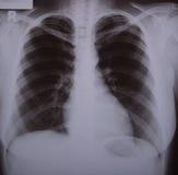 Röntgenstrahlbild der Lungen Stockbilder
