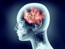 Röntgenstrahlbild des menschlichen Kopfes mit Explosion Lizenzfreie Stockfotografie