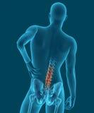 Röntgenstrahlbild eines Mannes mit Rückenschmerzen 3d übertragen Stockfotografie