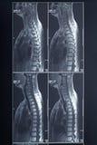 Röntgenstrahldorn und Halsradiographie Lizenzfreie Stockbilder