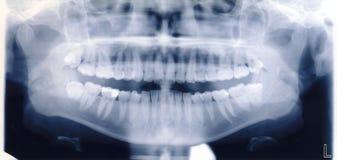 Röntgenstrahleintragfaden des menschlichen Munds und der Zähne Stockfotografie