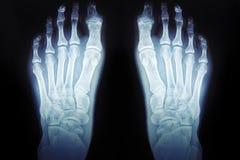 Röntgenstrahlen des Fußes, medizinische Diagnosen des menschlichen Fußes stockfoto