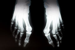 Röntgenstrahlfüße Stockbild