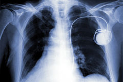 Röntgenstrahlfilm Lizenzfreie Stockbilder